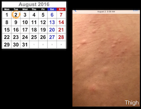 Prednisone Short-Course for bad dermatitis, transformed from